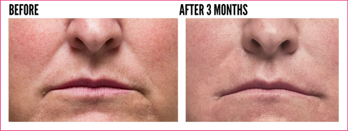 wrinkle reduction beverly hills