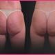 west hollywood cellulite treatments