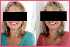 nonsurgical facelift beverly hills