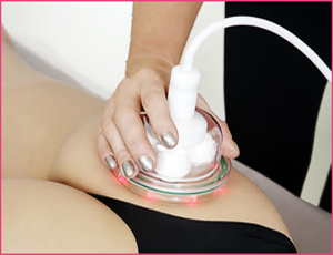 cellulite removal beverly hills