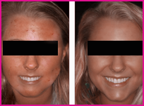 beverly hills acne facial peel